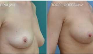 Эндопротезирование-голеней1ф (2)