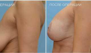 Эндопротезирование-голеней1ф (3)