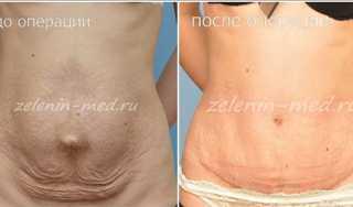 Эндопротезирование-голеней1ф (8)