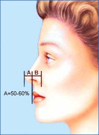 Приблизительно 50-60% высоты носа должно проецироваться впереди верхней губы