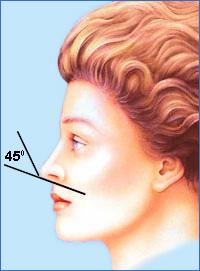 Идеальный угол между колумеллой и наиболее выступающей точкой кончика равен 45°