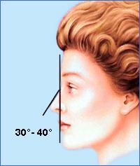 Идеальный носолобный угол (угол между линией лба и спинкой носа) равен 30-40°