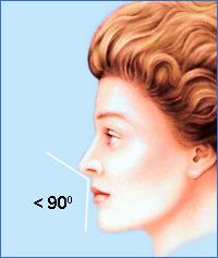 Для женщин предпочтительней, чтобы носогубный угол (угол между колумеллой и верхней губой) был больше 90°